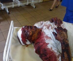 Москвич с четырьмя пулевыми ранениями в голову остался живым