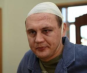 Звезда «Дома-2» Степан Меньщиков жестоко избит в Москве